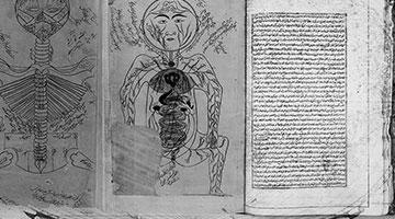 Avicenna's The Canon of Medicine